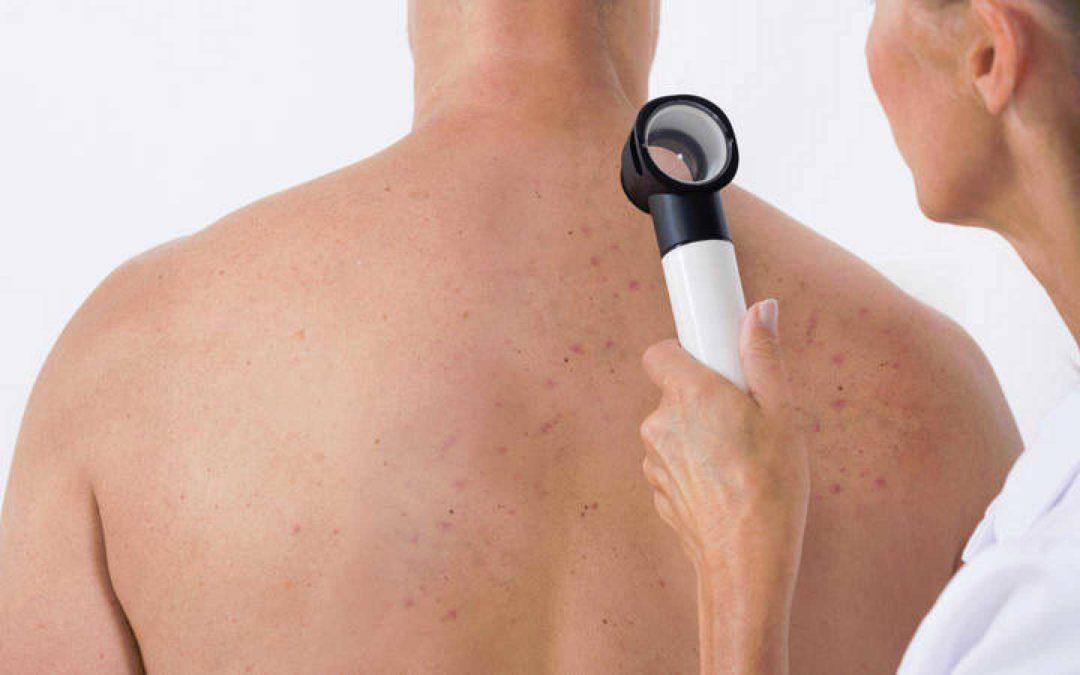 Tu piel también se comunica | Día Internacional del Cáncer de Piel